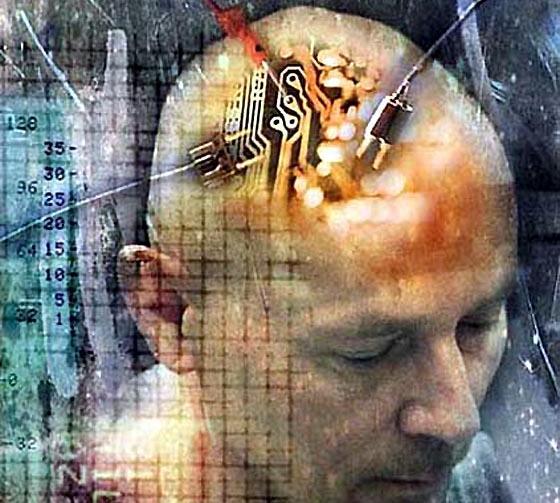brainimplant