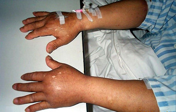 6 Bizarre Medical Conditions That Shouldn't Be Possible