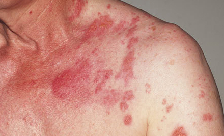 5 Things You Learn After Getting Shingles