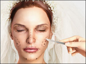 Bridalplasty: The New Reality Show That Proves We're Doomed