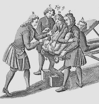Notice there are four men holding the patient down.