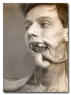 10 Old-Timey Medical Treatments Inspired by Your Nightmares