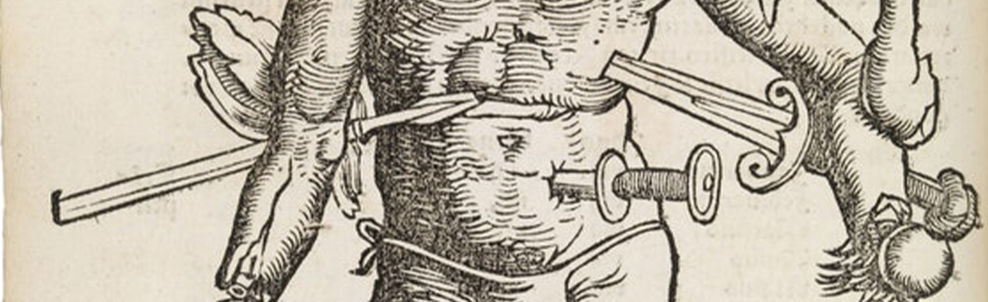 Meet 'Wound Man,' The IKEA Instruction Manual Of Medieval Surgery