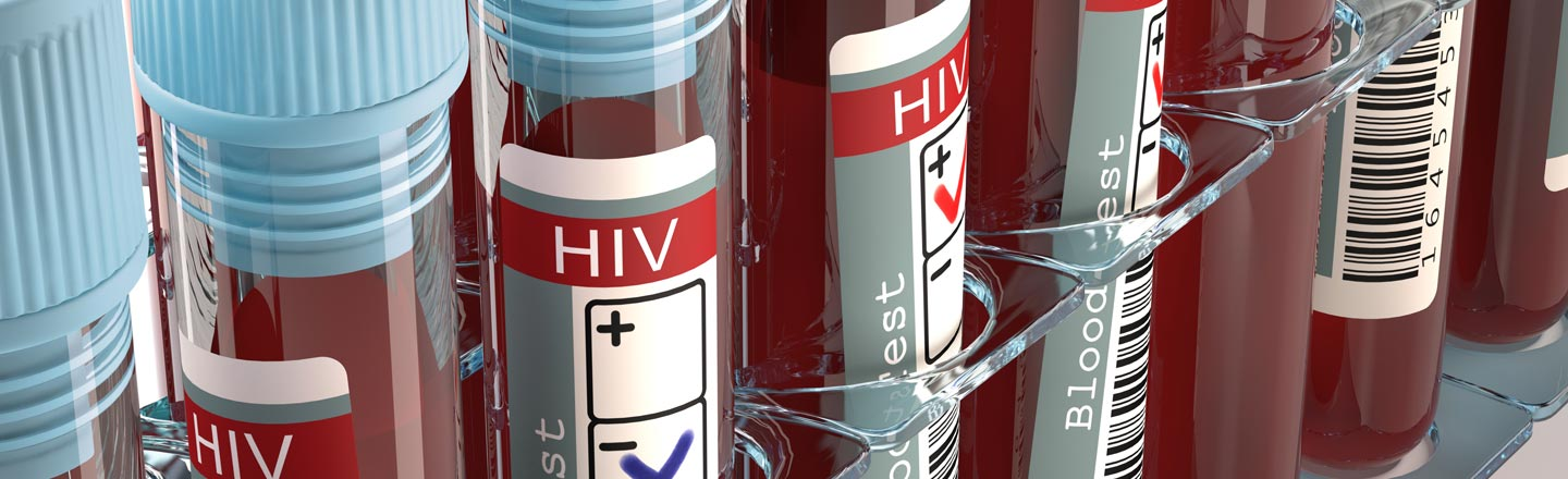 GOOD Virus News: TWO People Have Been Cured Of HIV