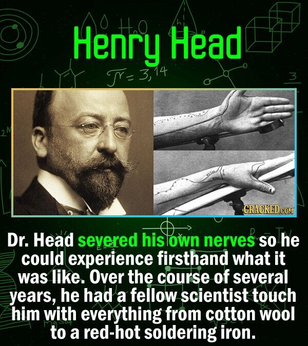 Henry H.0 Head = 3, 3 Dr. Head severed his lown nerves SO he could experience firsthand what it was like. Over the course of several years, he had a f
