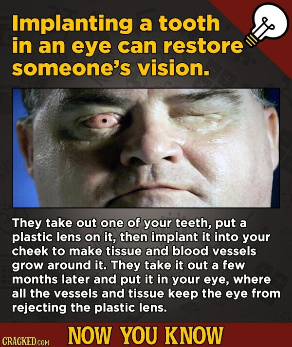 Implanting a tooth in an eye can restore someone's vision. They take out one of your teeth, put a plastic lens on it, then implant it into your cheek