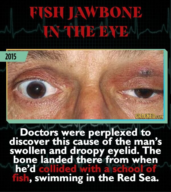 FISH JAWBONE IN THE EYE 2015 Doctors were perplexed to discover this cause of the man's swollen and droopy eyelid. The bone landed there from when he'd collided with a school of fish, swimming in the Red Sea.