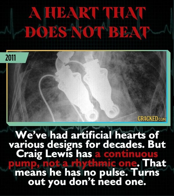 A HEART THAT DOES NOT BEAT 2011 CRACKED CO We've had artificial hearts of various designs for decades. But Craig Lewis has a continuous Pump, not a rhythmic one. That means he has no pulse. Turns out you don't need one.