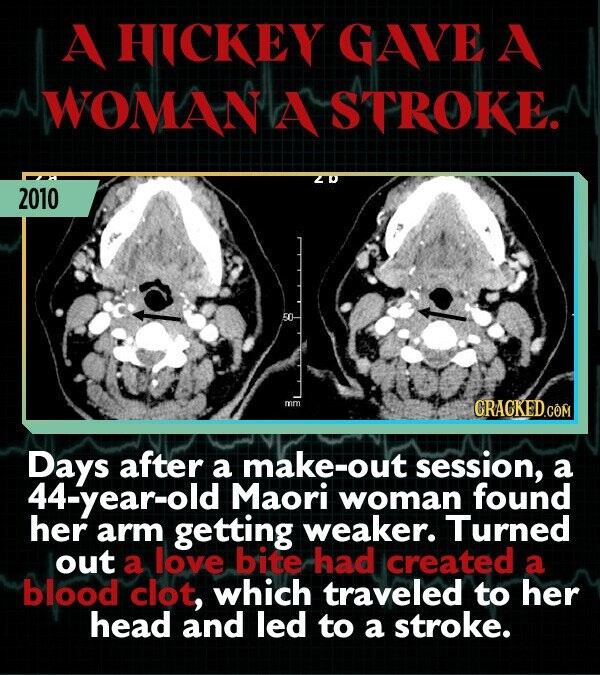 A HICKEY GAVE A WOMANA STROKE. 2010 1 mm Days after a make-out session, a 44-year-old Maori woman found her arm getting weaker. Turned out a love bite had icreated a blood clot, which traveled to her head and led to a stroke.
