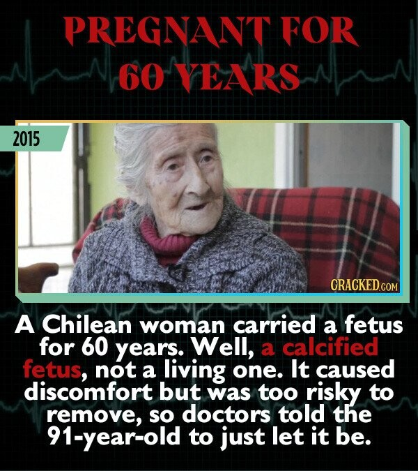 PREGNANT FOR 6O VEARS 2015 CRACKEDcO A Chilean woman carried a fetus for 60 years. Well, a calcified fetus, not a living one. It caused discomfort but was too risky to remove, so doctors told the 91-year-old to just let it be.