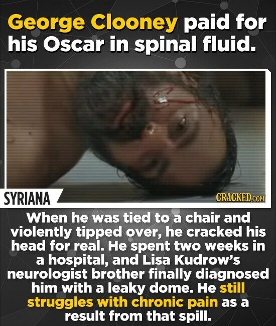 George Clooney paid for his Oscar in spinal fluid. SYRIANA CRACKED COM When he was tied to a chair and violently tipped over, he cracked his head for real. He spent two weeks in a hospital, and Lisa Kudrow's neurologist brother finally diagnosed him with a leaky dome. He still struggles