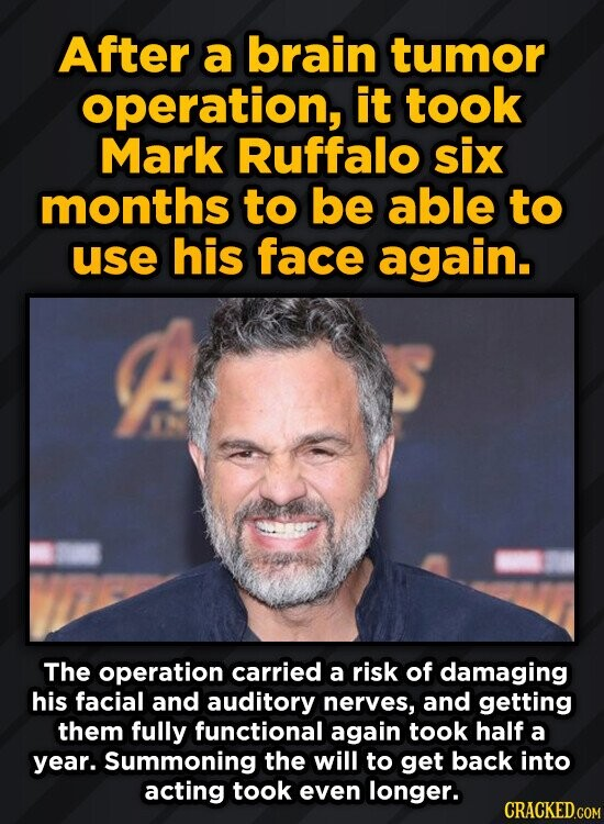 After a brain tumor operation, it took Mark Ruffalo six months to be able to use his face again. The operation carried a risk of damaging his facial a