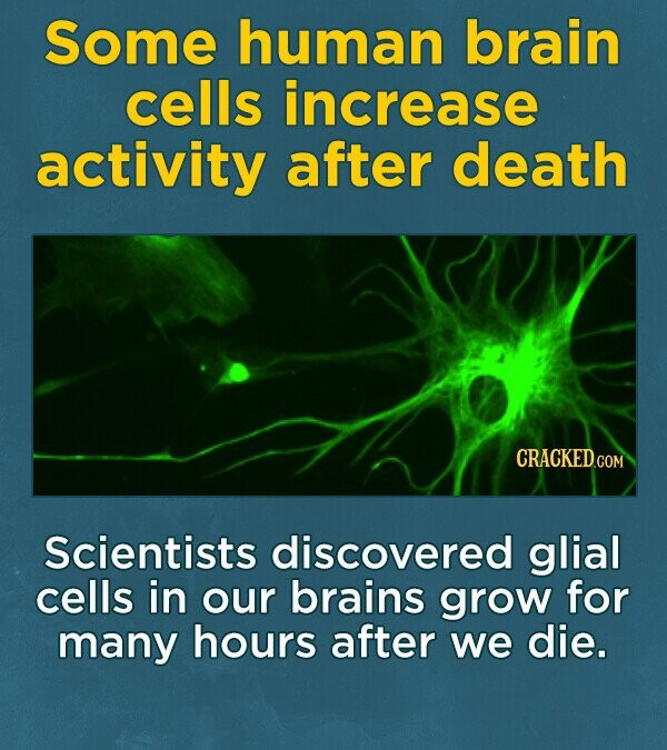 Some human brain cells increase activity after death CRACKEDG Scientists discovered glial cells in our brains grow for many hours after we die.