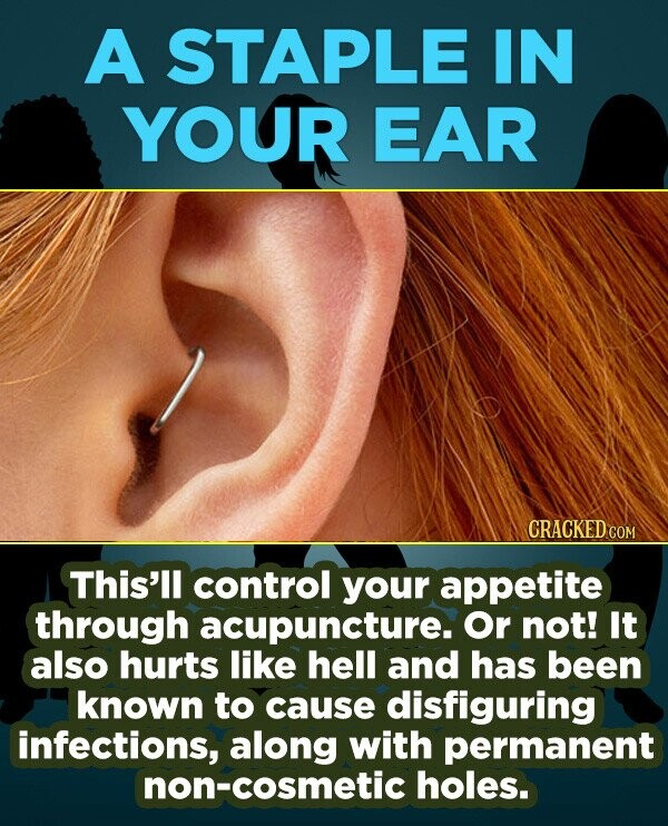 A STAPLE IN YOUR EAR CRACKED COM This'll control your appetite through acupuncture. Or not! It also hurts like hell and has been known to cause disfig