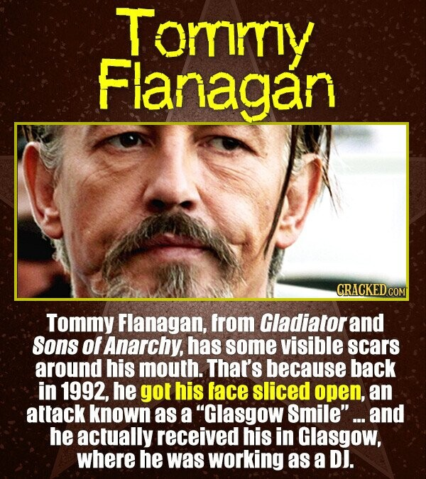 Tommy Fianagan CRACKEDCON Tommy Flanagan, from Gladiatorand Sons of Anarchy, has some visible scars around his mouth. That's because back in 1992, he