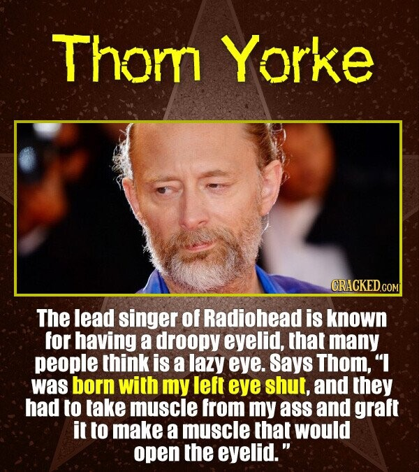 Thom Yorke CRACKED.CO The lead singer of Radiohead is known for having a droopy eyelid, that many people think is a lazy eye. Says Thom, was born wit