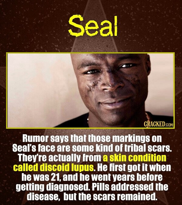 Seal CRACKED.COI Rumor says that those markings on Seal's face are some kind of tribal scars. They're actually from a skin condition called discoid lu