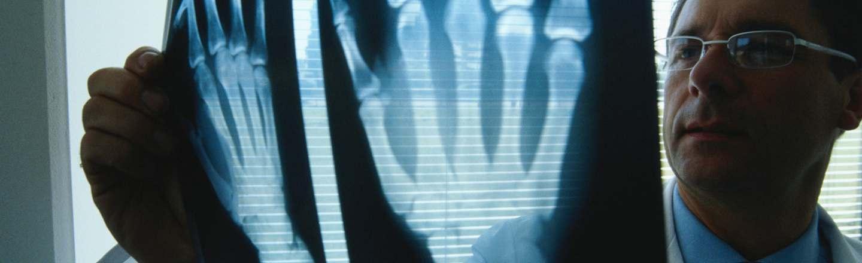 I Got A Hand Transplant: 5 Horrifying Realities