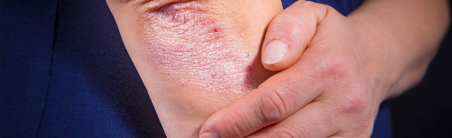 4 Ways Psoriasis Is Even More Heartbreaking Than You Thought