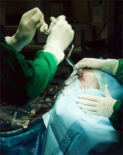 Awake During Brain Surgery: 5 Bizarre Things You Experience