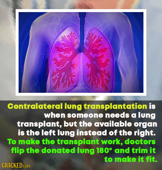 Contralaterall lung transplantation is when someone needs a lung transplant, but the available organ is the left lung instead of the right. To make th