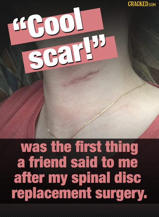 Cool scar! was the first thing a friend said to me after my spinal disc replacement surgery.