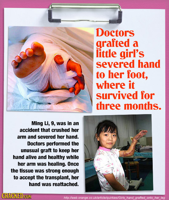 23 Insane Surgeries You Won't Believe Actually Happened
