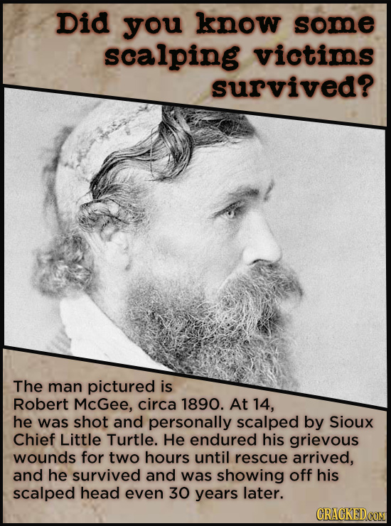 Did you know some scalping victims survived? The man pictured is Robert McGee, circa 1890. At 14, he was shot and personally scalped by Sioux Chief Li