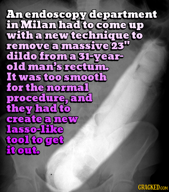 An endoscopy department in Milan had to come up with a new technique to remove a massive 23 dildo from a 31-year- old man's rectum. It was too smooth