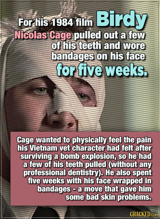15 WTF Things Actors Did For Their Art - For his 1984 film Birdy, Nicolas Cage pulled out a few of his teeth and wore bandages on his face for five we