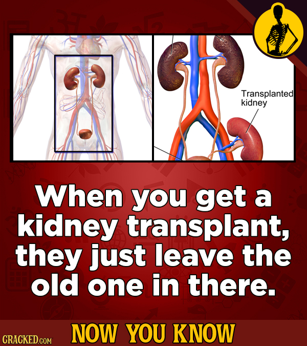 Transplanted kidney When you get a kidney transplant, they just leave the old one in there. NOW YOU KNOW CRACKED COM
