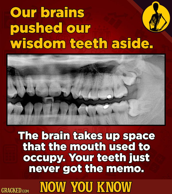 Our brains pushed our wisdom teeth aside. The brain takes up space that the mouth used to occupY. Your teeth just never got the memo. NOW YOU KNOW CRA