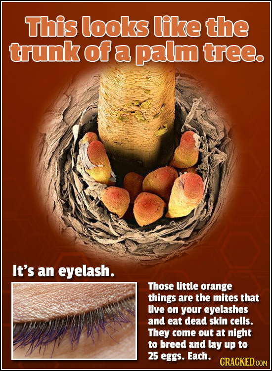 This looks like the trunk of a palm treeo It's an eyelash. Those little orange things are the mites that live on your eyelashes and eat dead skin cell