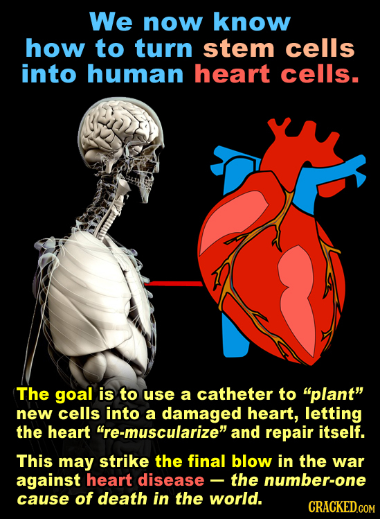 We now know how to turn stem cells into human heart cells. The goal is to use a catheter to plant new cells into a damaged heart, letting the heart