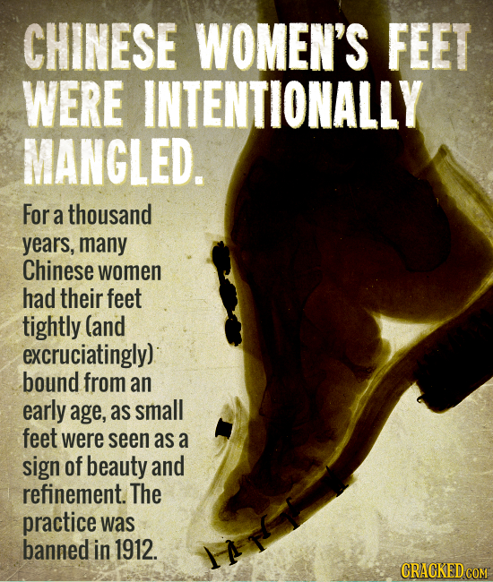 CHINESE WOMEN'S FEET WERE INTENTIONALLY MANGLED. For a thousand years, many Chinese women had their feet tightly (and excruciatingly) bound from an ea