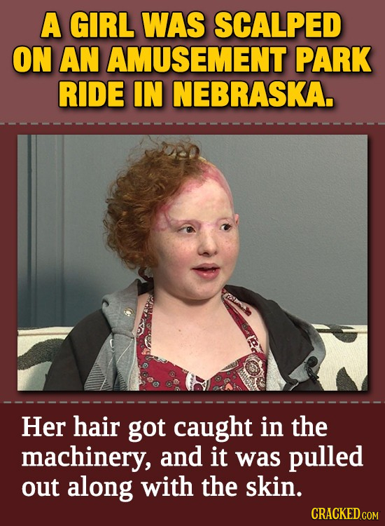 A GIRL WAS SCALPED ON AN AMUSEMENT PARK RIDE IN NEBRASKA. Ct Her hair got caught in the machinery, and it was pulled out along with the skin.