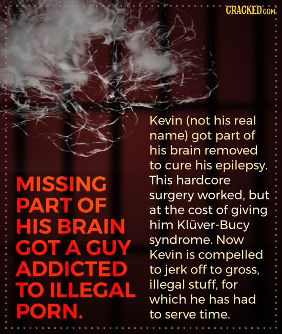 CRACKEDCOM. Kevin (not his real name) got part of his brain removed to cure his epilepsy. MISSING This hardcore surgery worked, but PART OF at the cos