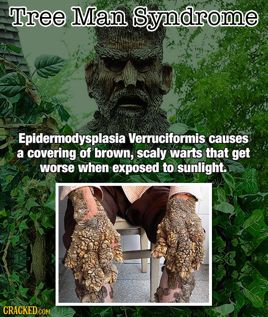 Tree Man Syndrome Epidermodysplasia Verruciformis causes a covering of brown, scaly warts that get worse when exposed to sunlight. CRACKED COM