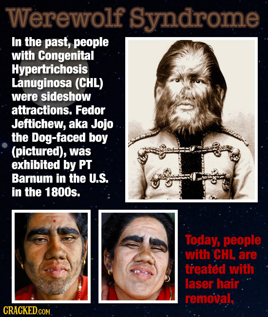 Werewolf Syndrome In the past, people with Congenital Hypertrichosis Lanuginosa (CHL) were sideshow attractions. Fedor Jeftichew, aka Jojo the Dog-fac
