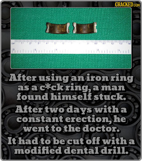 B 10 12 After using an iron ring as a c*ck ring, a man found himself stuck. After two days with a constant erection, he went to the doctor. It had to