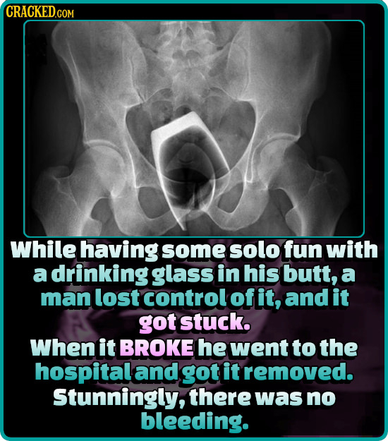 CRACKED.GOM While having some solo fun with a drinking glass in his butt, a man lost control ofit, and it got stuck. When it BROKE he went to the hosp