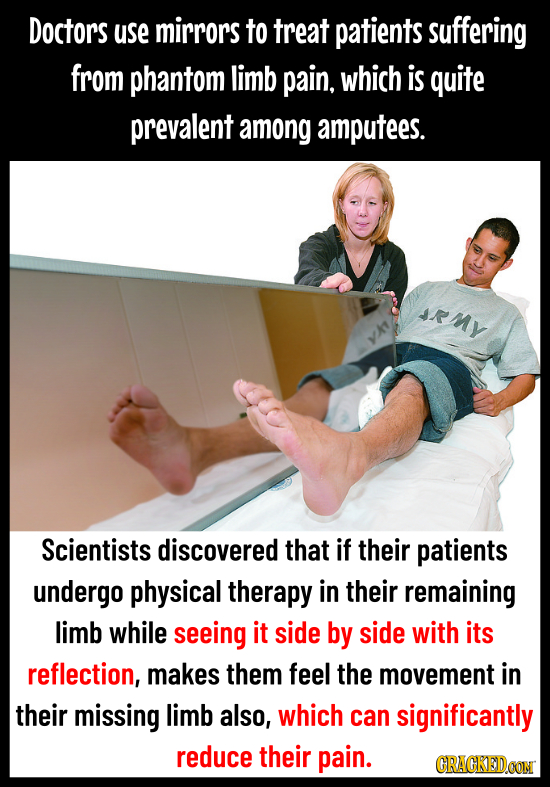 Doctors use mirrors to treat patients suffering from phantom limb pain. which is quite prevalent among amputees. RMy YAT Scientists discovered that if
