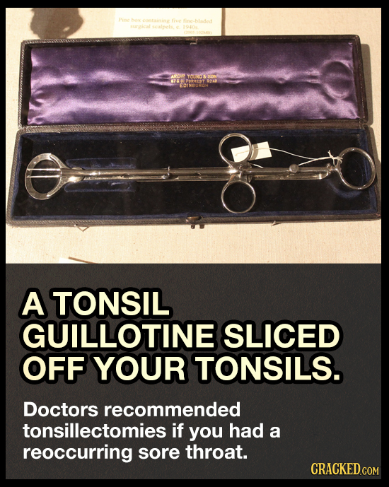 hie /S aVO RDINBUAGH A TONSIL GUILLOTINE SLICED OFF YOUR TONSILS. Doctors recommended tonsillectomies i if you had a reoccurring sore throat. CRACKED.