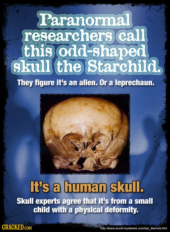 Paranormal researchers call this odd shaped skull the Starchild. They figure it's an alien. Or a leprechaun. It's a human skull. Skull experts agree t