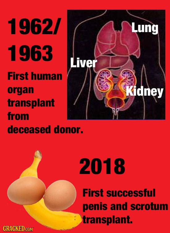 1962/ Lung 1 963 Liver First human organ Kidney transplant from deceased donor. 2018 First successful penis and scrotum transplant. CRACKED com