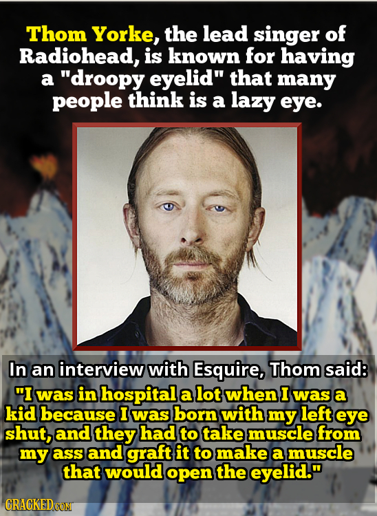 Thom Yorke, the lead singer of Radiohead, is known for having a droopy eyelid that many people think is a lazy eye. In an interview with Esquire, Th