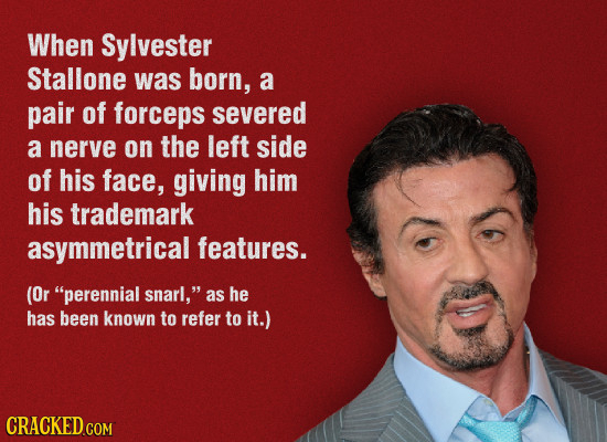 When Sylvester Stallone was born, a pair of forceps severed a nerve on the left side of his face, giving him his trademark asymmetrical features. (Or