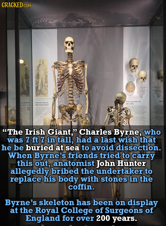 CRACKEDCO COM af Carles rme he The Irish Giant, Charles Byrne, who was 7 ft 7 in tall, had a last wish that he be buried at sea to avoid dissection.