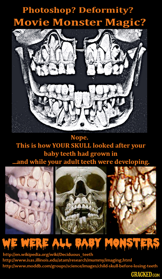 Photoshop? Deformity? Movie Monster Magic? Nope. This is how YOUR SKULL looked after your baby teeth had grown in ...and while your adult teeth were d