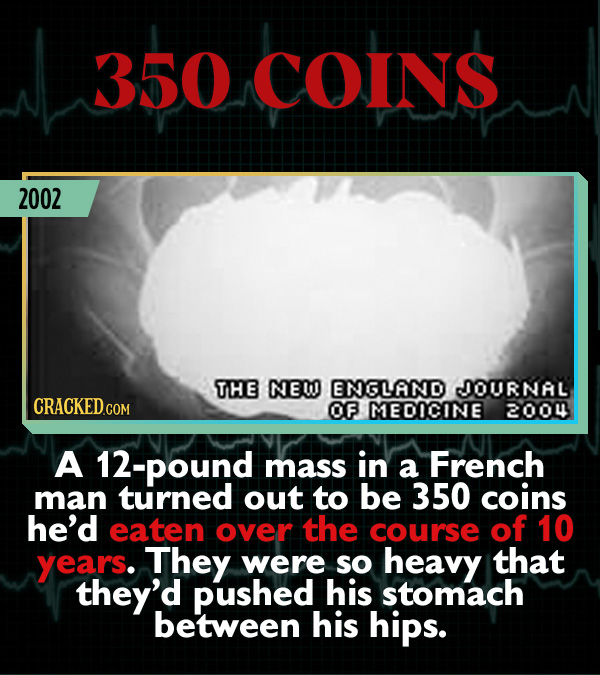 15 Weird Cases That Walked Into Doctors' Operating Rooms - A 12-pound mass in a French man turned out to be 350 coins he'd eaten over the course of 10